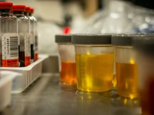 what is urinalysis
