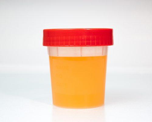 orange urine